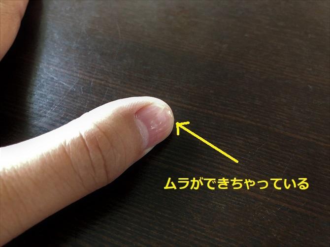 削りムラができちゃった親指の爪