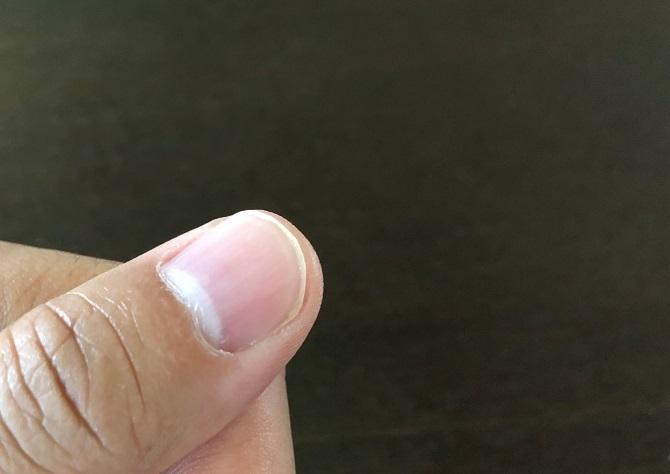 親指の爪のアップ写真